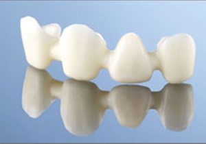 Le bridge dentaire